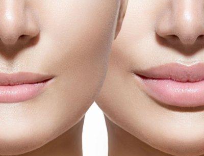 Пухлая верхняя губа и клитор